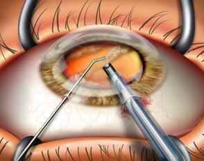 cataract-surgery-dubai